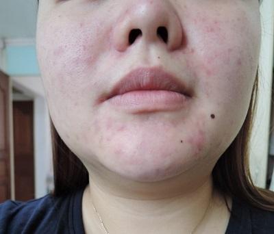 without_makeup1