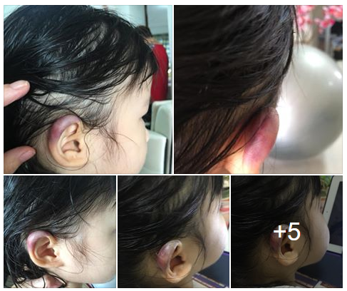 girl injured ear